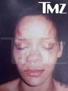 battered-rihanna-police-photo_400x534